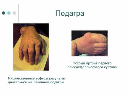 орви у детей: симптомы и лечение в зависимости от протекания болезни